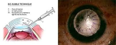 cheratoplastica lamellare