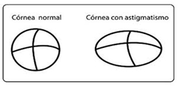 astigmatismo2