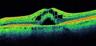 Fig. 3 OCT: edema retinico