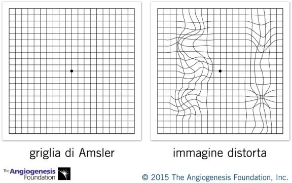 Fig. 7 griglia di Amsler: l'osservazione con un occhio per volta di questa griglia permette di valutare ladeformazione delle immagini prodotte dalla maculopatia e controllarne l'evoluzione